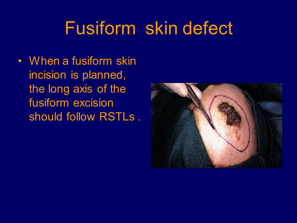 Fusiform skin defect When a fusiform skin incision is planned, the long axis of the fusiform excision should follow RSTLs .