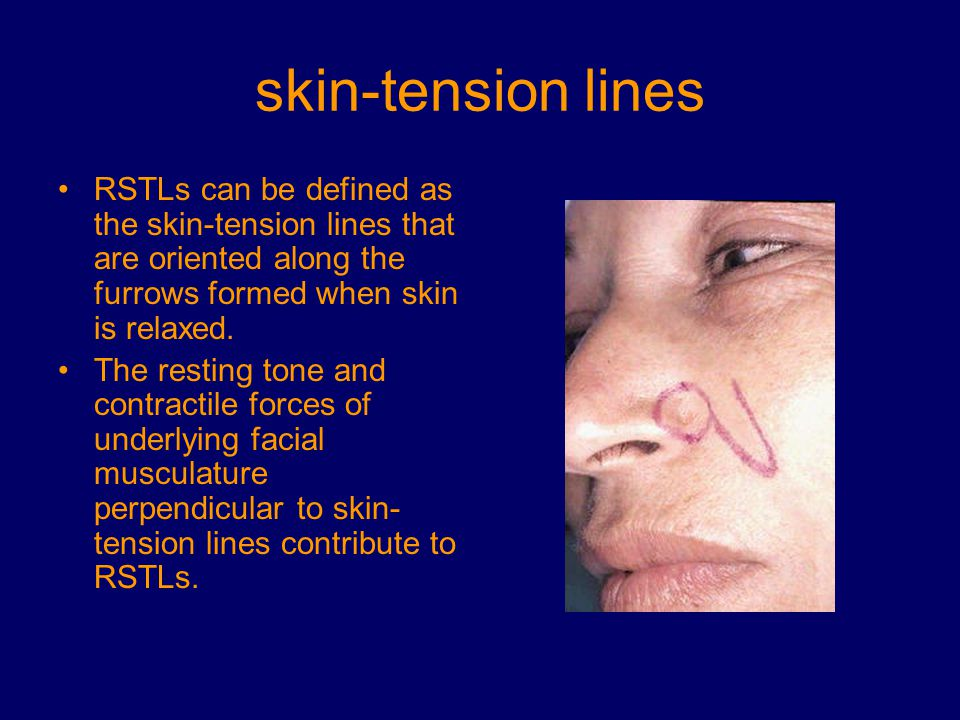 skin-tension lines RSTLs can be defined as the skin-tension lines that are oriented along the furrows formed when skin is relaxed.