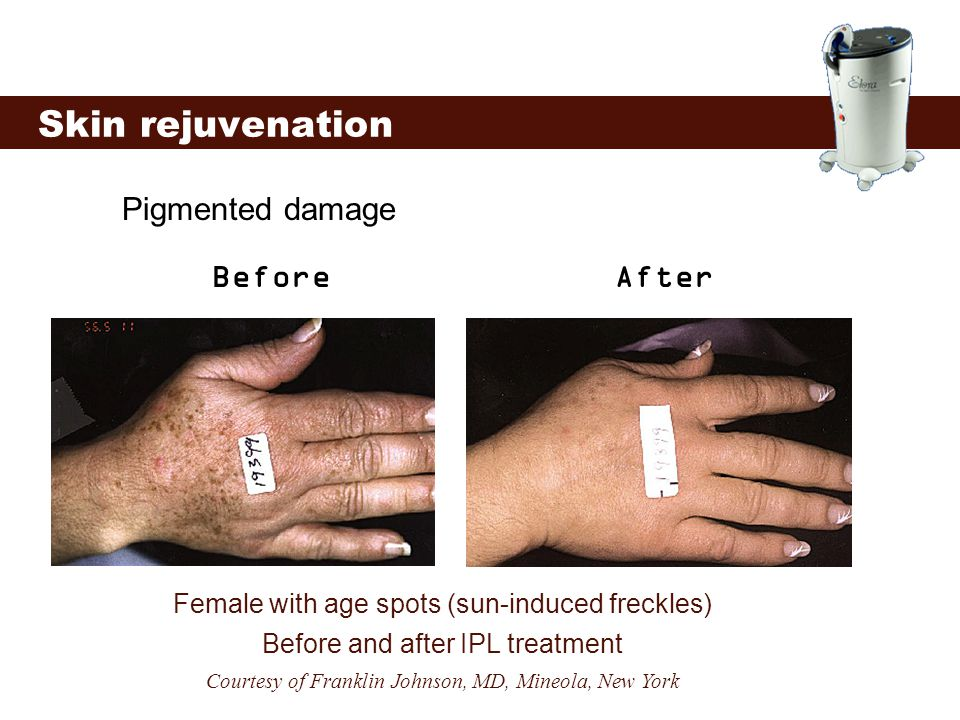 Skin rejuvenation Pigmented damage Before After
