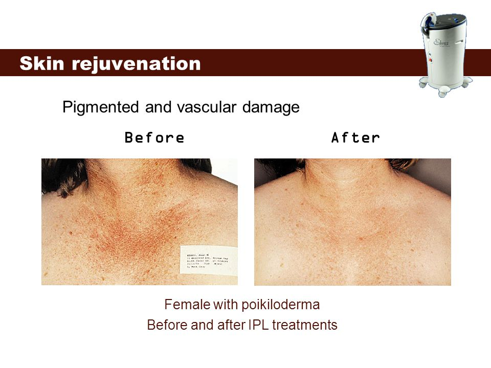 Skin rejuvenation Pigmented and vascular damage Before After