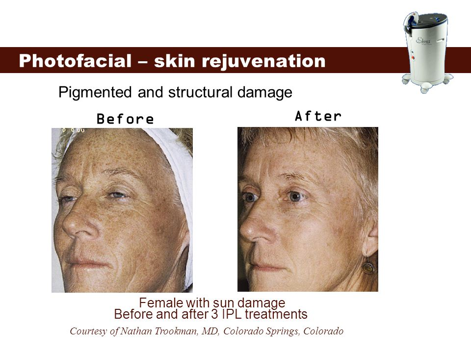 Photofacial – skin rejuvenation