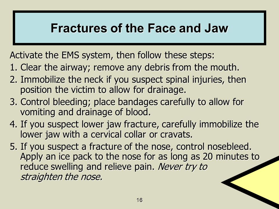 Fractures of the Face and Jaw