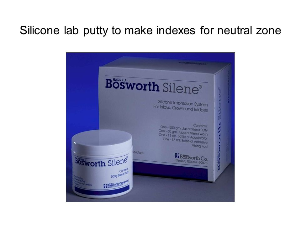 Silicone lab putty to make indexes for neutral zone
