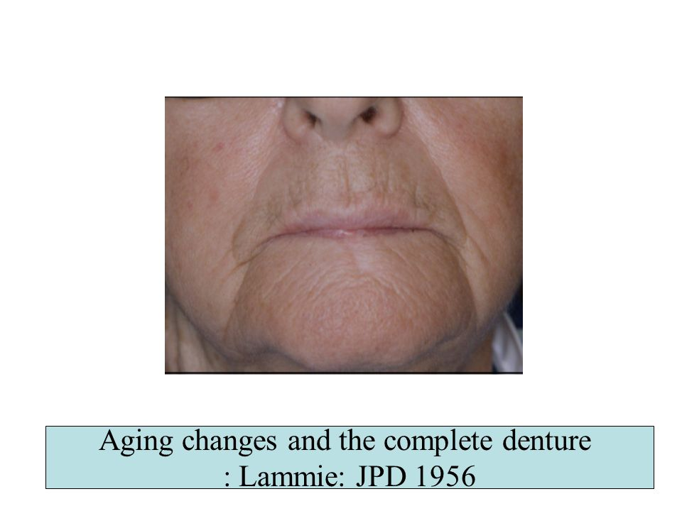 Aging changes and the complete denture