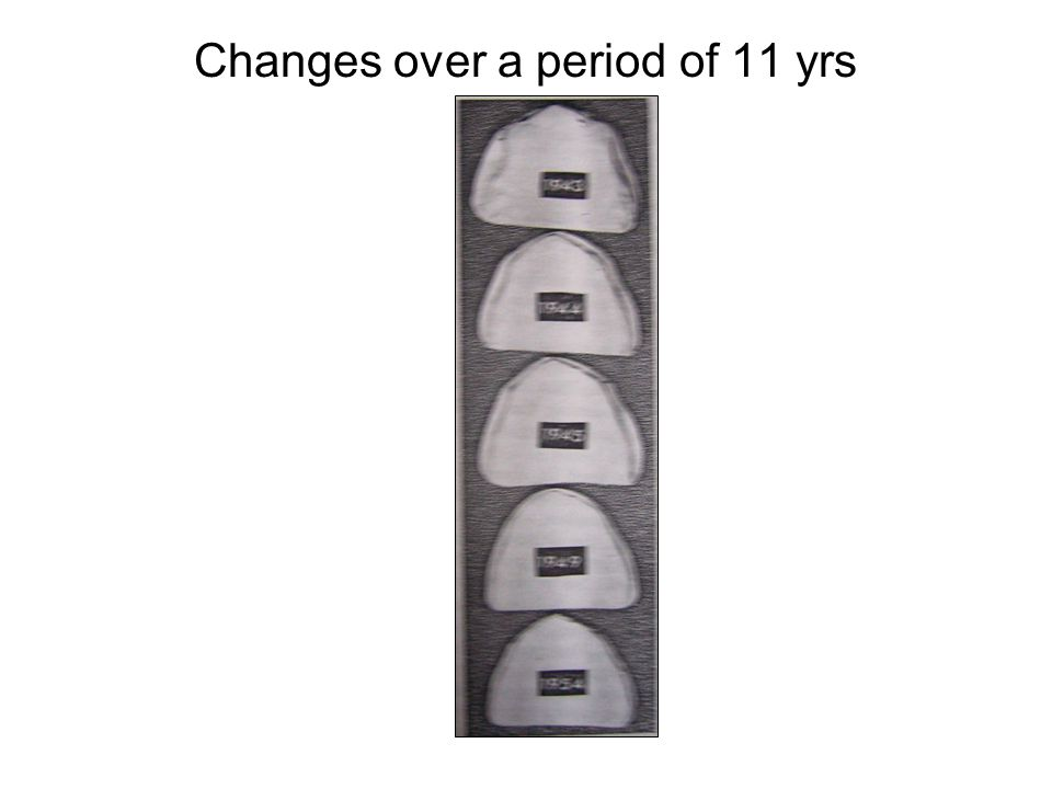 Changes over a period of 11 yrs