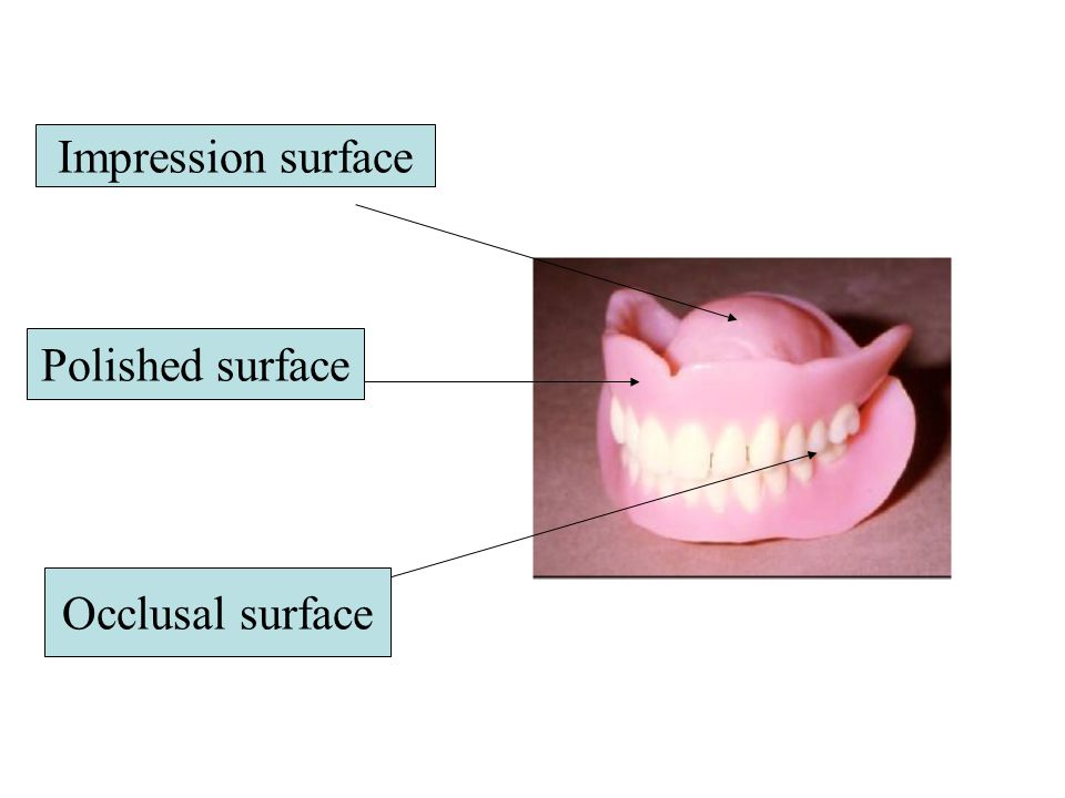 Impression surface Polished surface Occlusal surface
