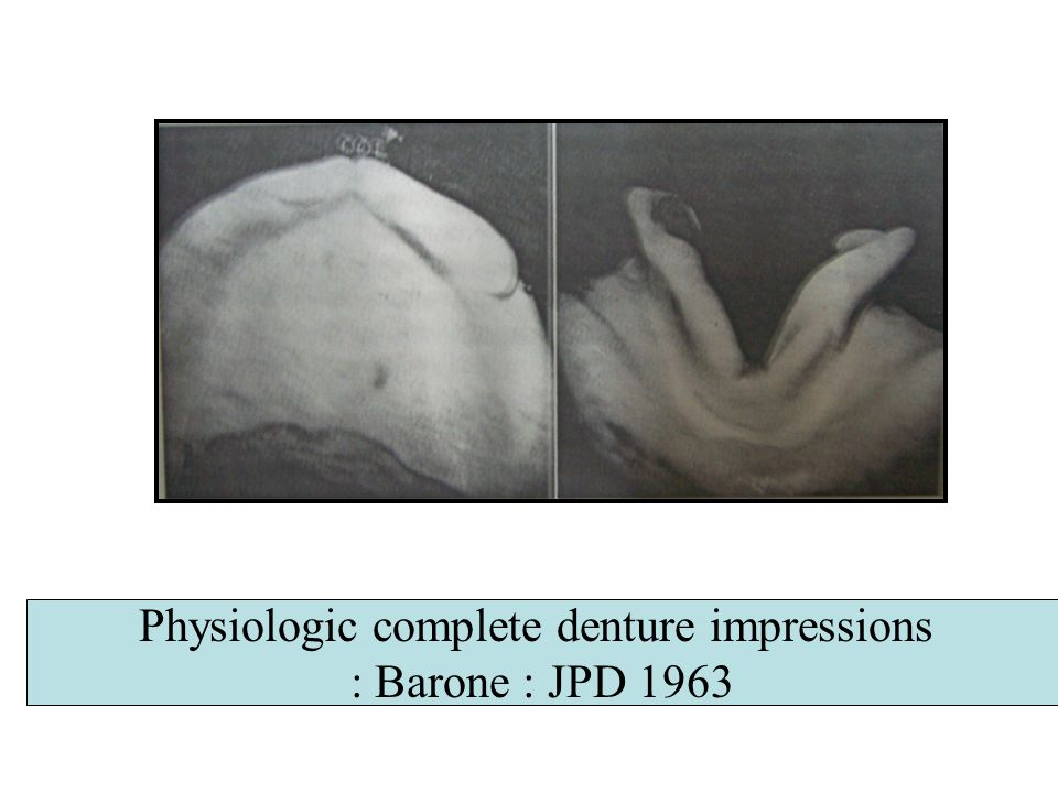 Physiologic complete denture impressions