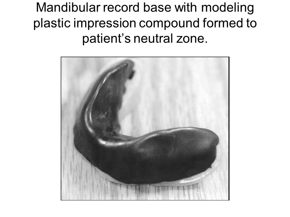 Mandibular record base with modeling plastic impression compound formed to patient's neutral zone.