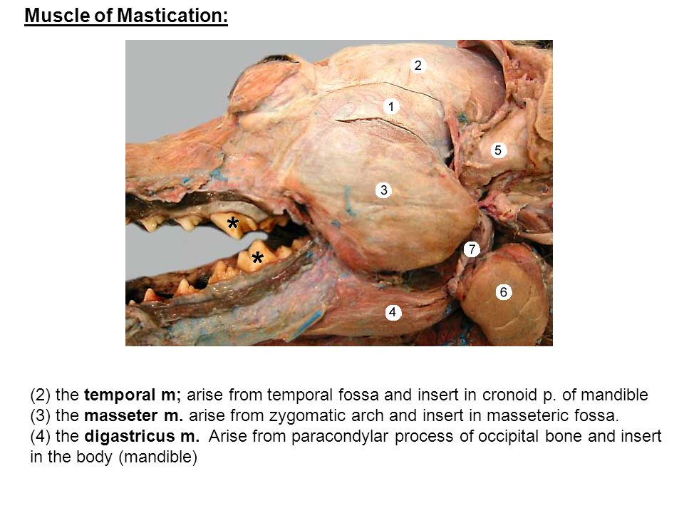Muscle of Mastication: