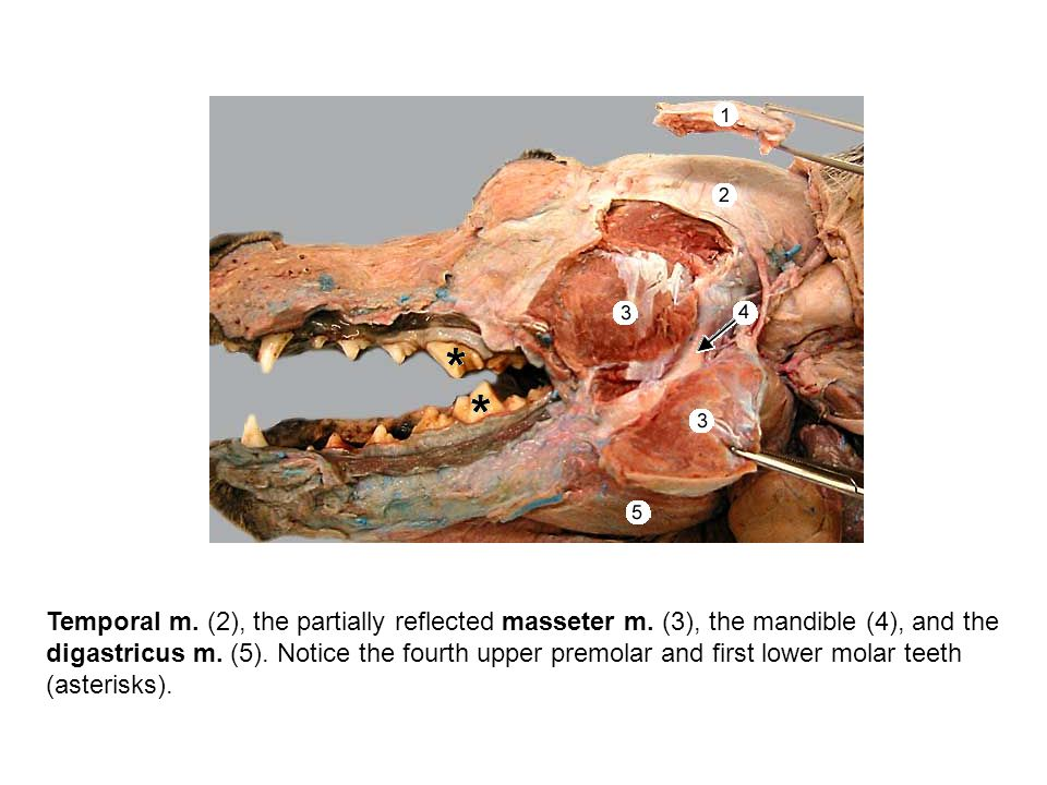 Temporal m. (2), the partially reflected masseter m