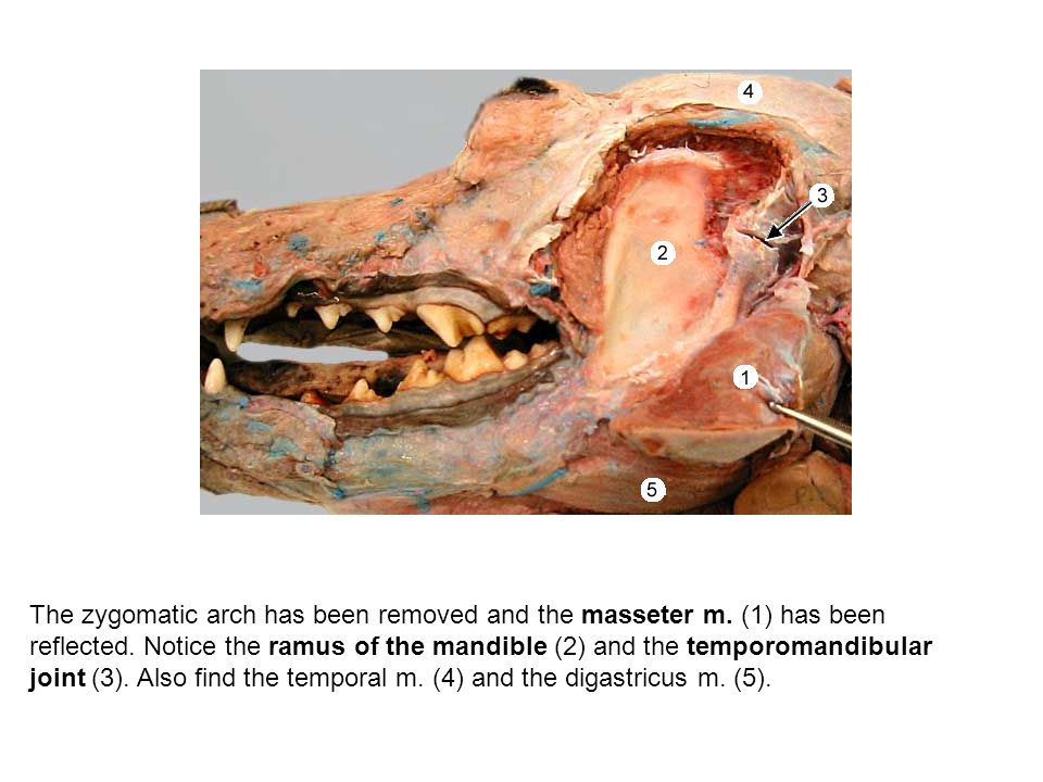 The zygomatic arch has been removed and the masseter m