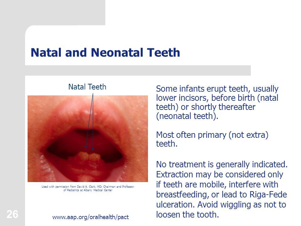 Natal and Neonatal Teeth