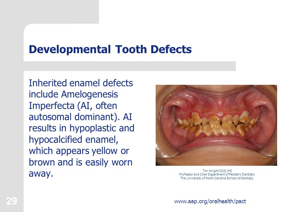 Developmental Tooth Defects