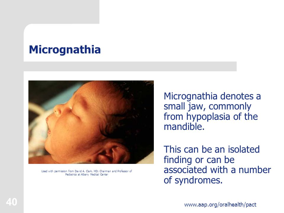 Micrognathia Micrognathia denotes a small jaw, commonly from hypoplasia of the mandible.