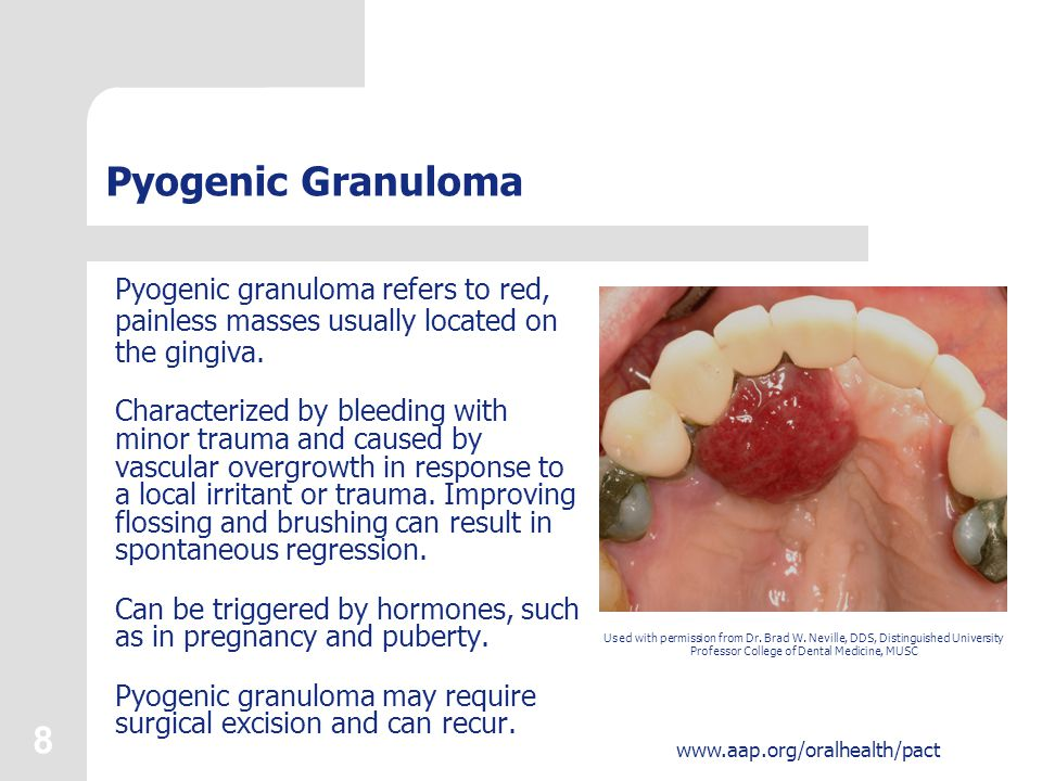 Pyogenic Granuloma Pyogenic granuloma refers to red, painless masses usually located on the gingiva.
