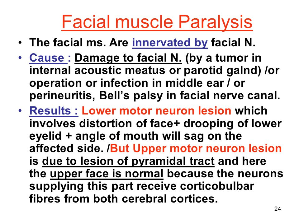 Facial muscle Paralysis