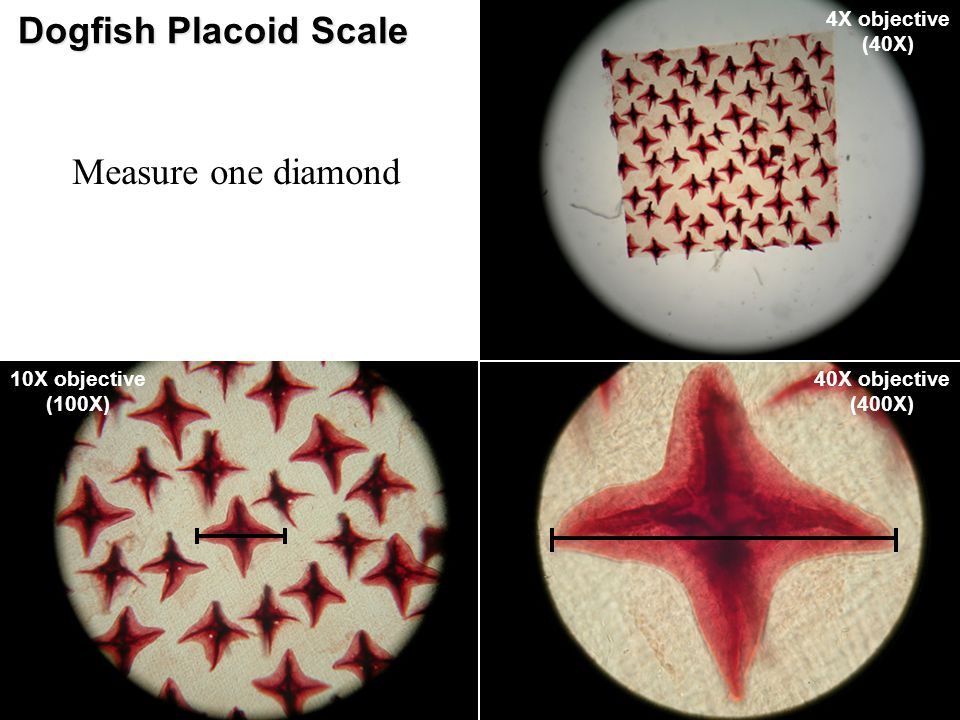 Dogfish Placoid Scale Measure one diamond 4X objective (40X)