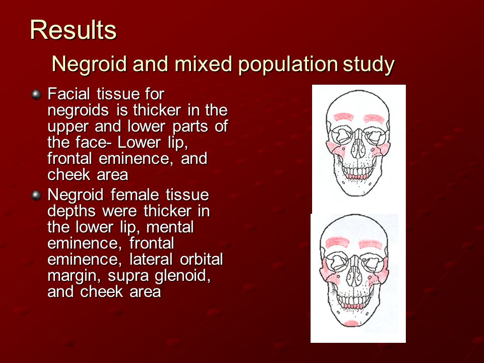 Results Negroid and mixed population study