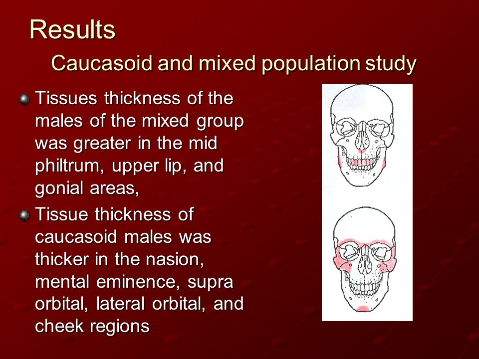 Results Caucasoid and mixed population study