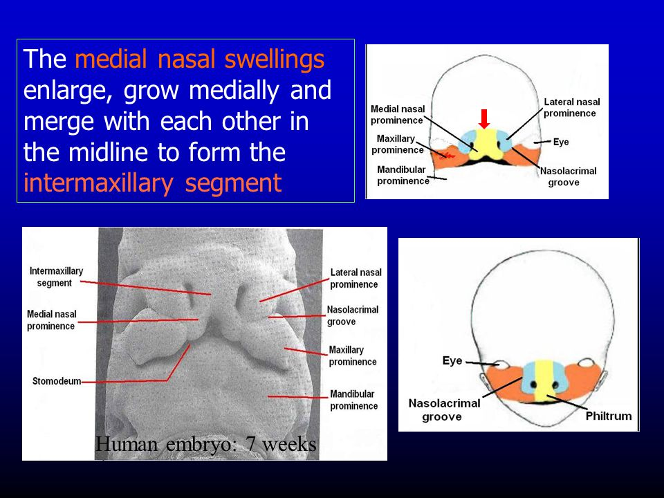 The medial nasal swellings enlarge, grow medially and merge with each other in the midline to form the intermaxillary segment