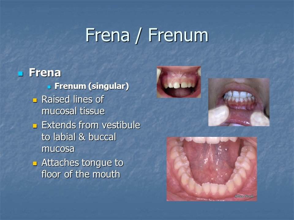 Frena / Frenum Frena Raised lines of mucosal tissue