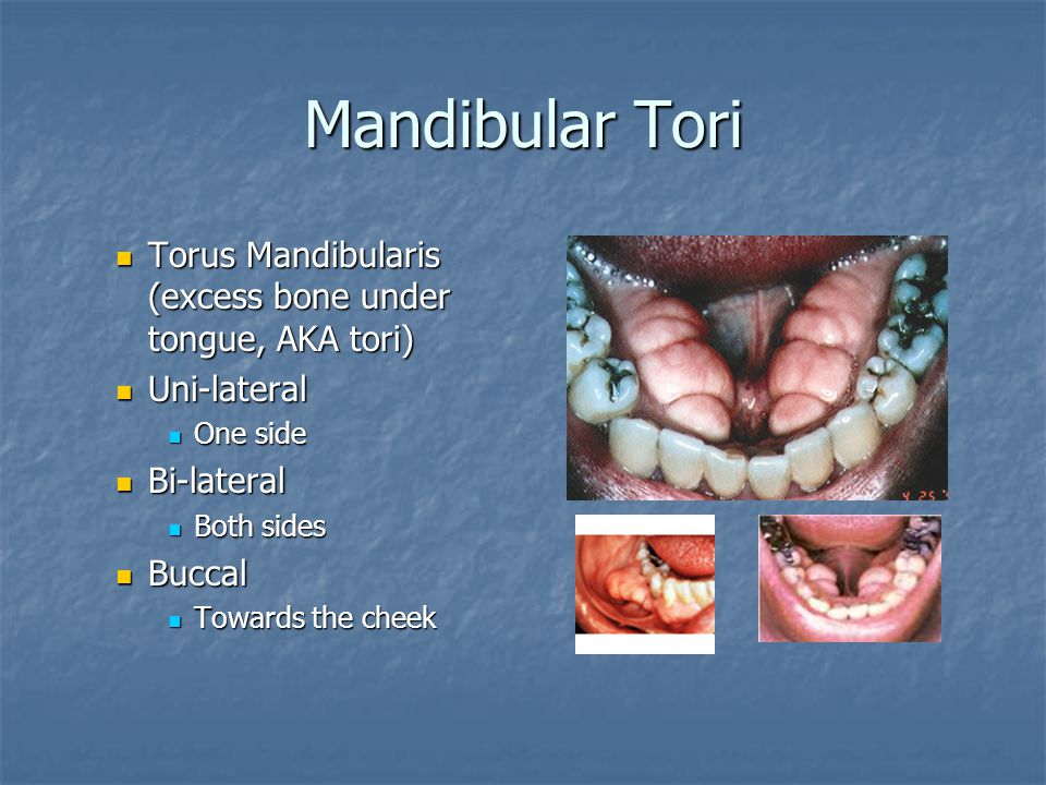 Mandibular Tori Torus Mandibularis (excess bone under tongue, AKA tori) Uni-lateral. One side. Bi-lateral.