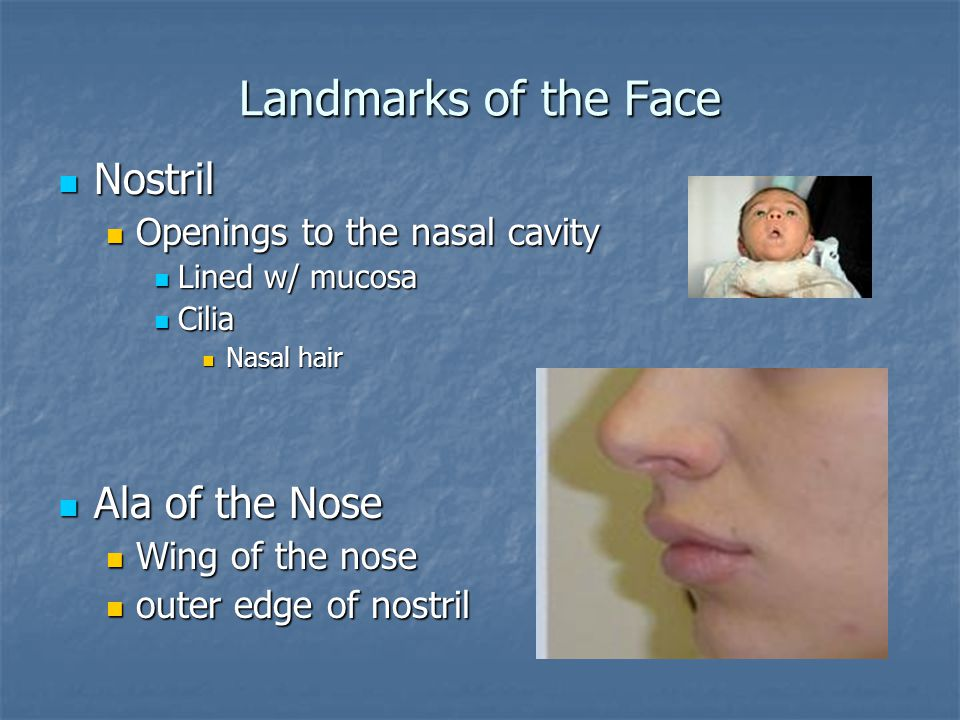 Landmarks of the Face Nostril Ala of the Nose