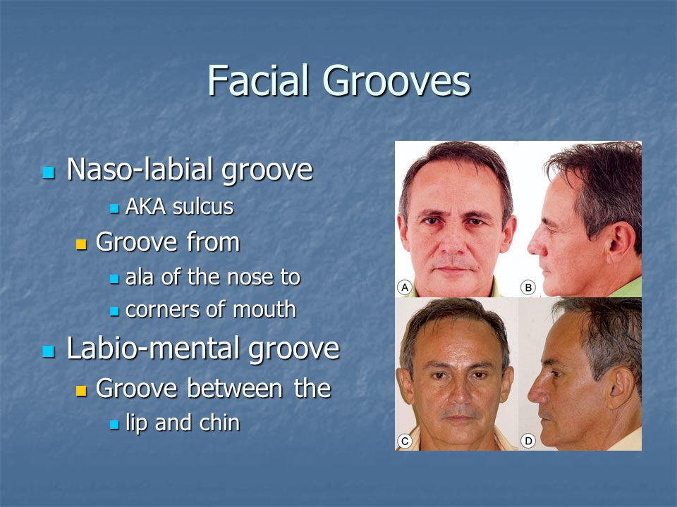 Facial Grooves Naso-labial groove Labio-mental groove Groove from