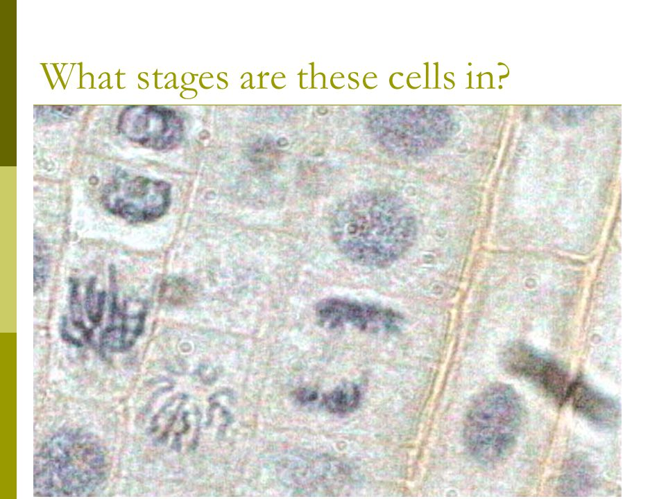 What stages are these cells in