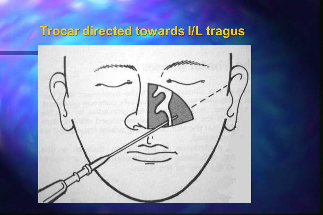 Trocar directed towards I/L tragus