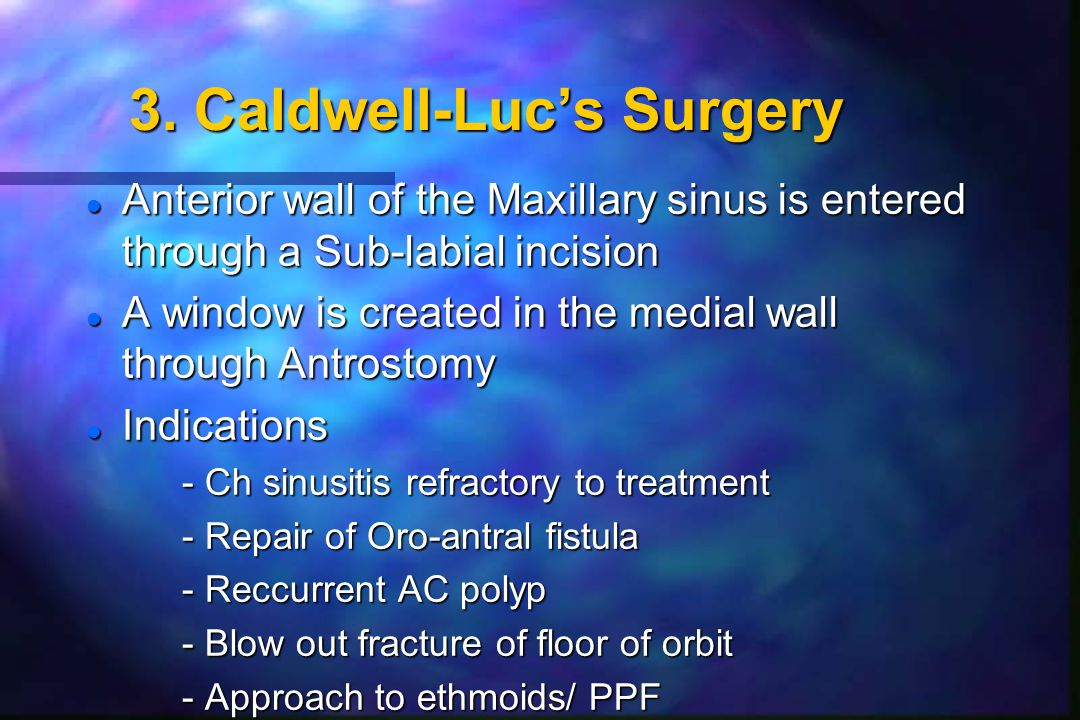 3. Caldwell-Luc's Surgery