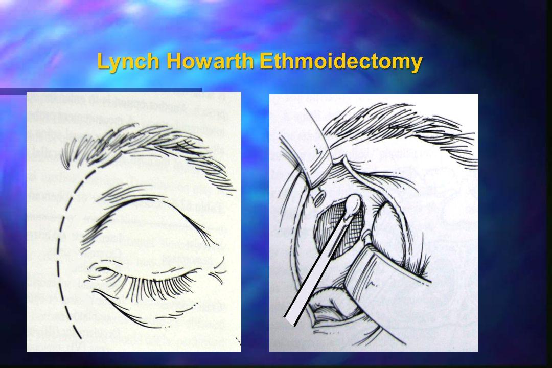Lynch Howarth Ethmoidectomy