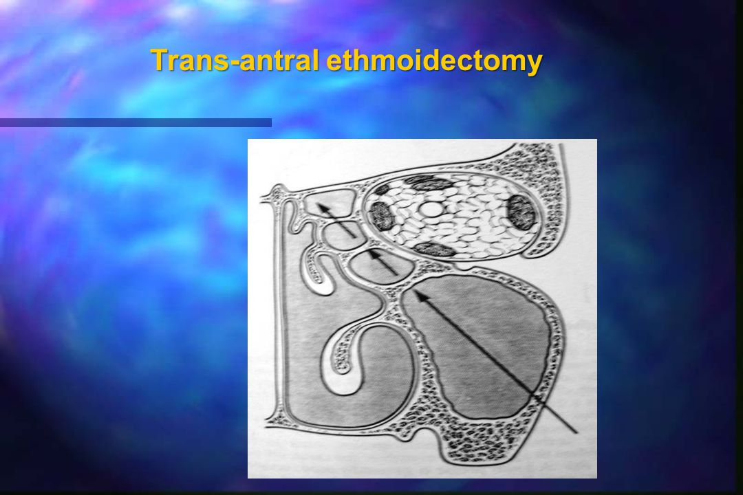 Trans-antral ethmoidectomy