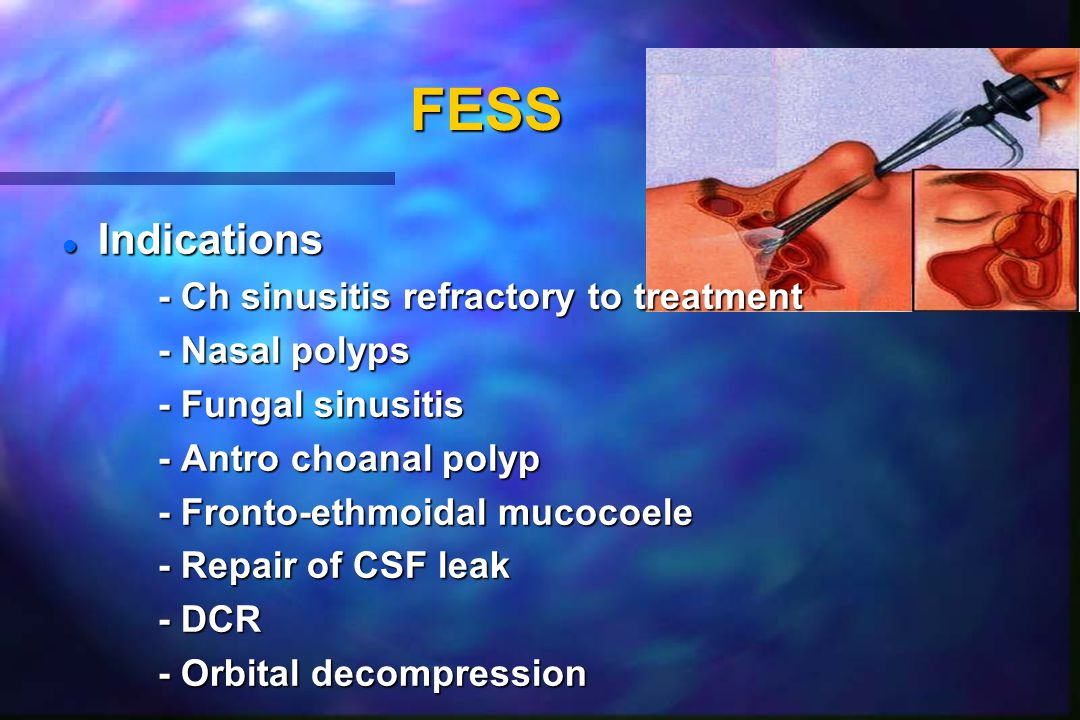 FESS Indications - Ch sinusitis refractory to treatment - Nasal polyps