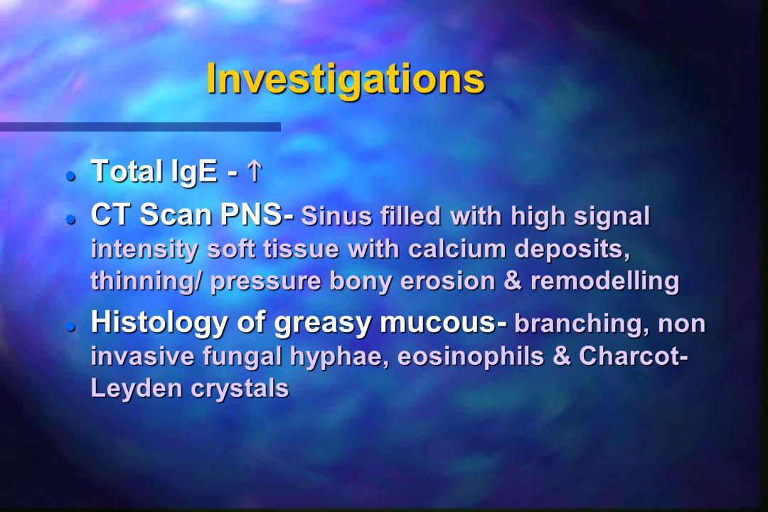 Investigations Total IgE - 