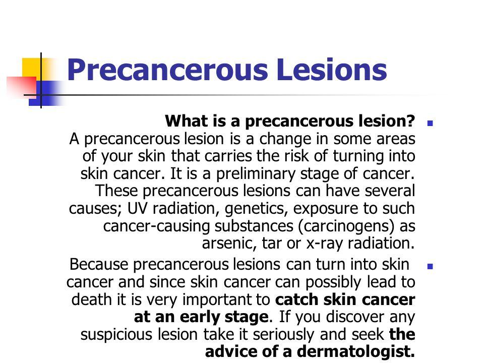 Precancerous Lesions