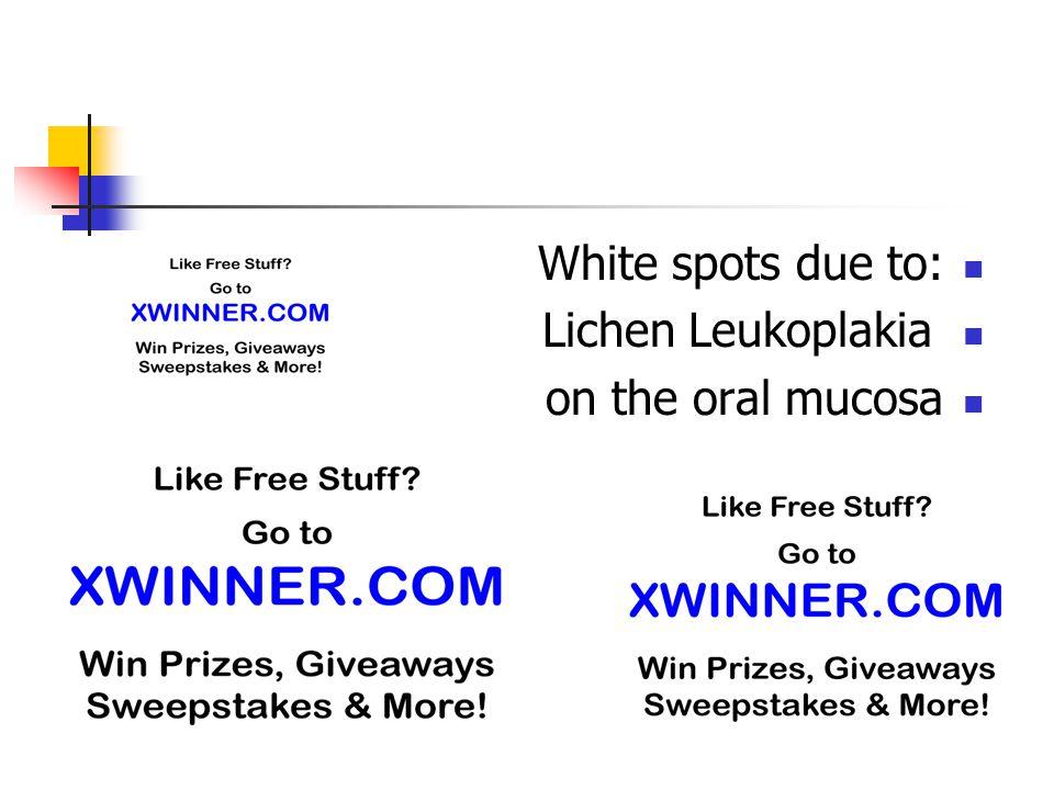 White spots due to: Lichen Leukoplakia on the oral mucosa