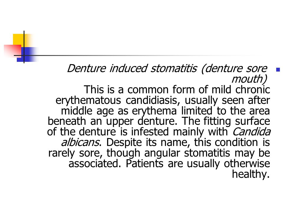 Denture induced stomatitis (denture sore mouth) This is a common form of mild chronic erythematous candidiasis, usually seen after middle age as erythema limited to the area beneath an upper denture.