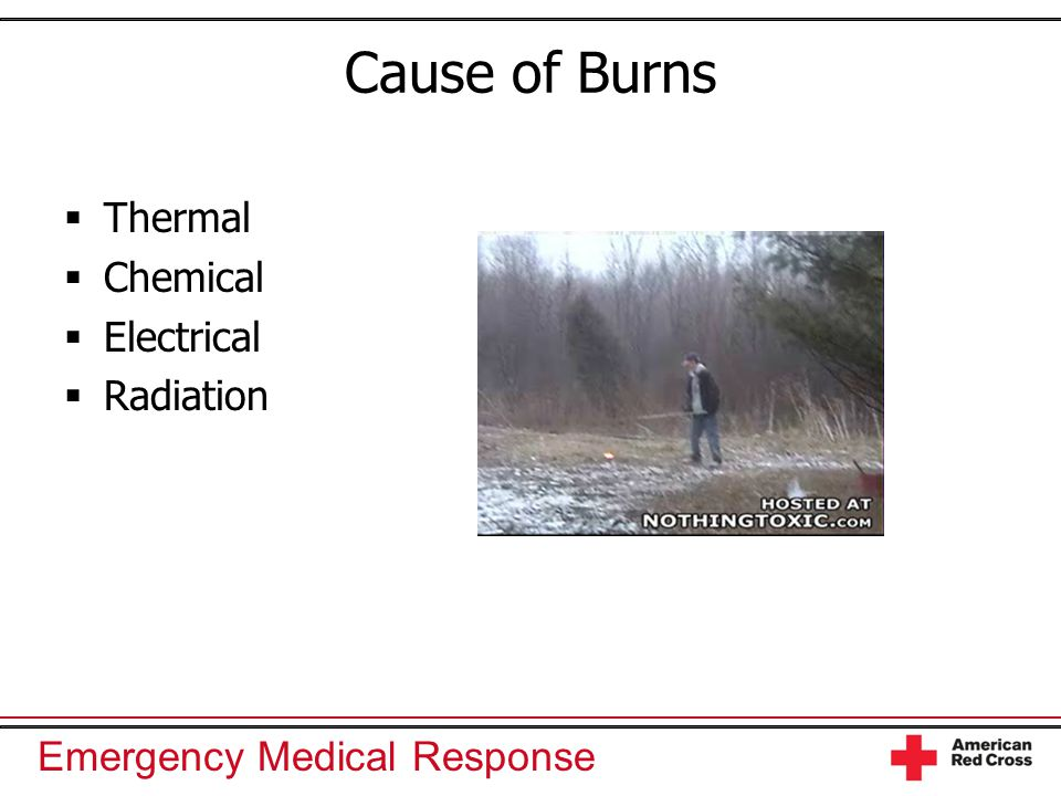 Cause of Burns Thermal Chemical Electrical Radiation