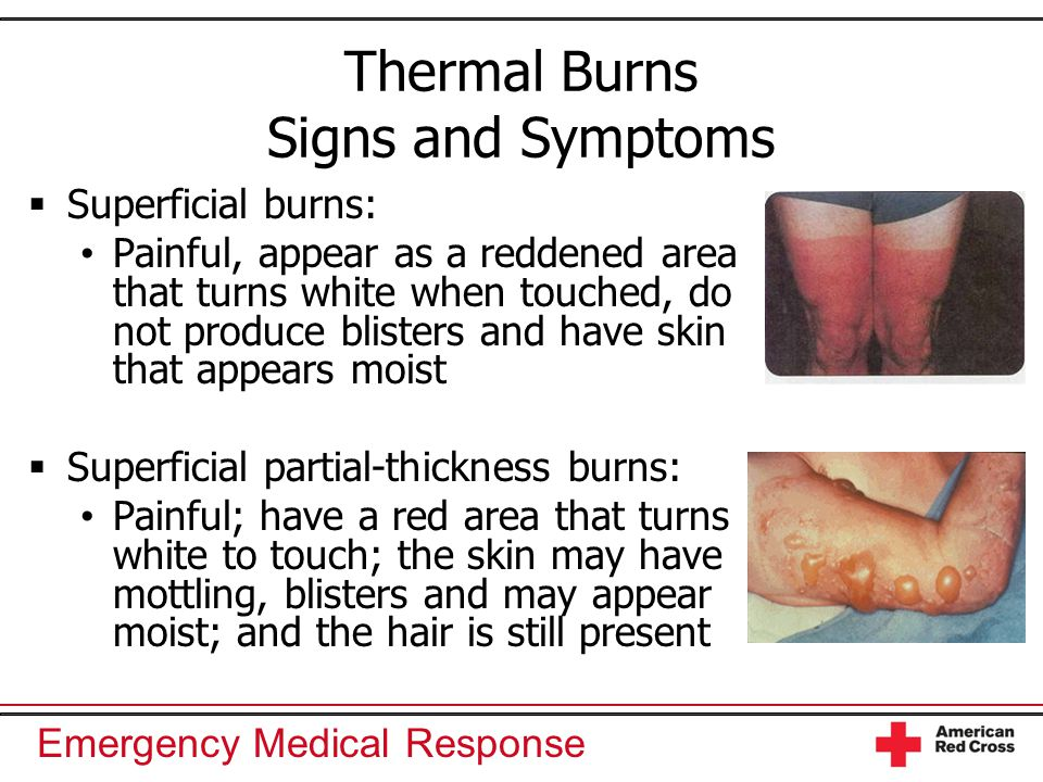 Thermal Burns Signs and Symptoms