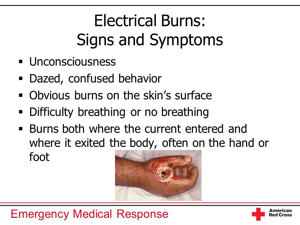 Electrical Burns: Signs and Symptoms