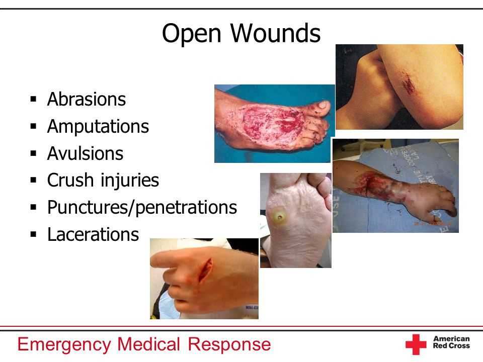 Open Wounds Abrasions Amputations Avulsions Crush injuries
