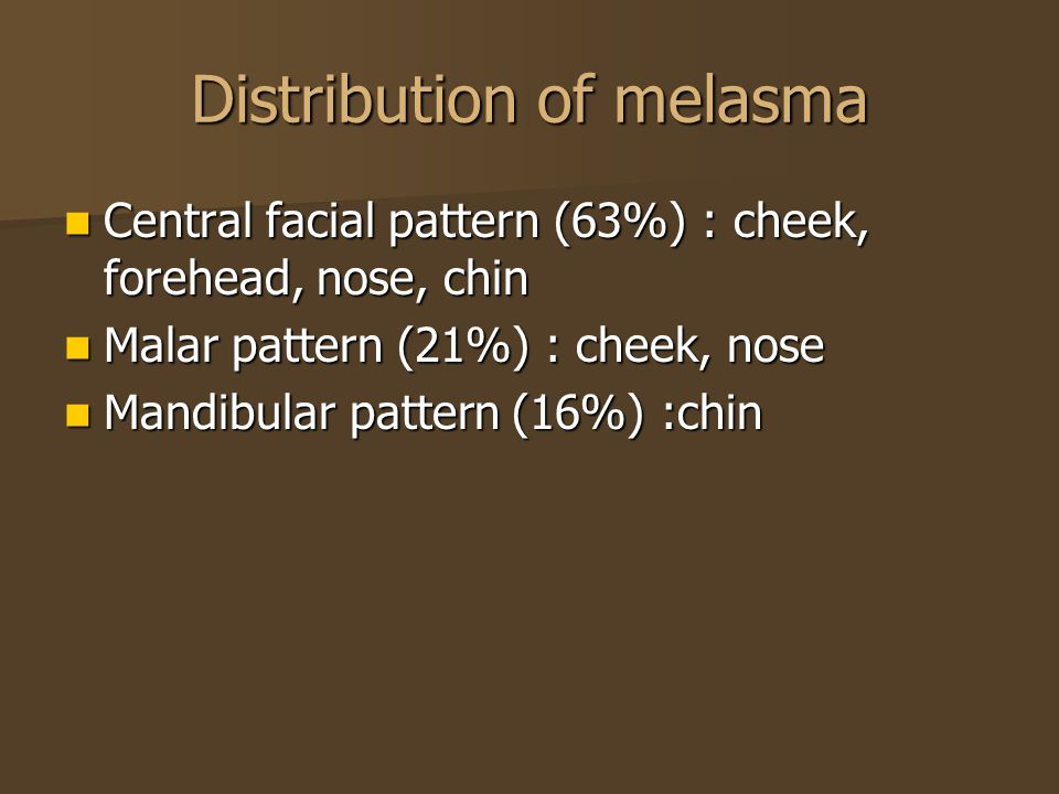 Distribution of melasma