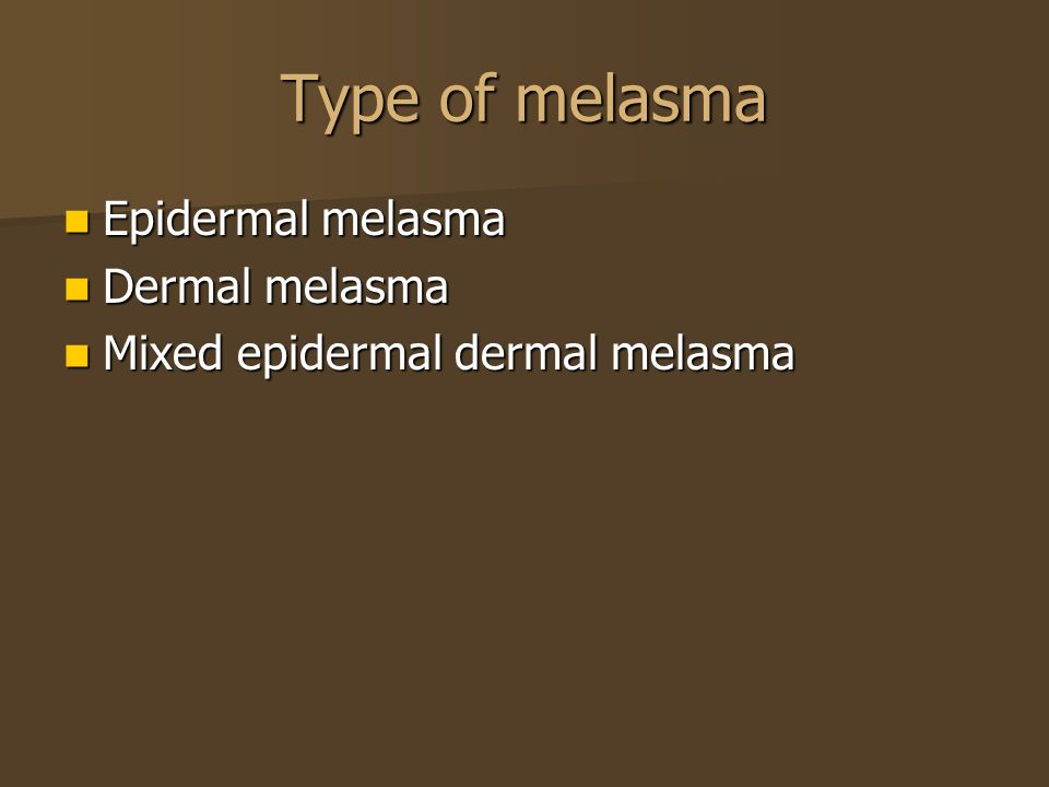 Type of melasma Epidermal melasma Dermal melasma