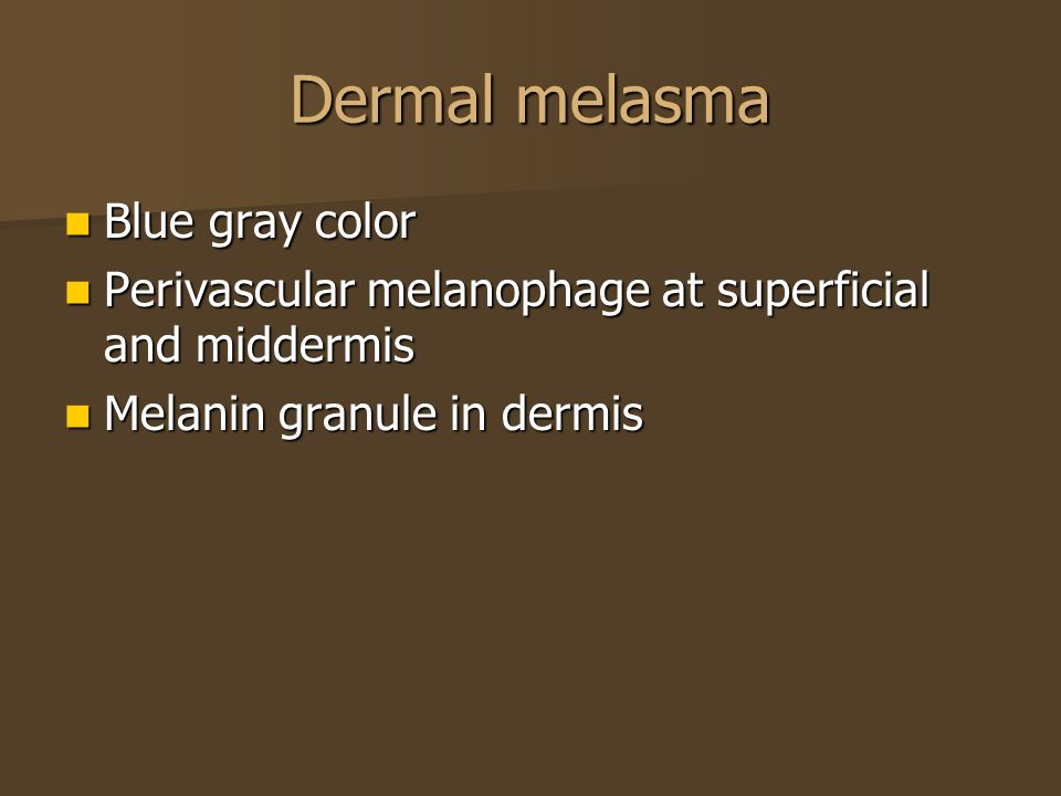 Dermal melasma Blue gray color