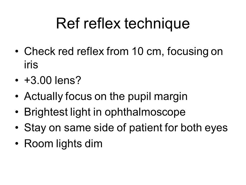 Ref reflex technique Check red reflex from 10 cm, focusing on iris