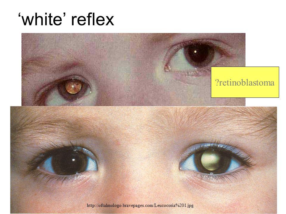 'white' reflex retinoblastoma