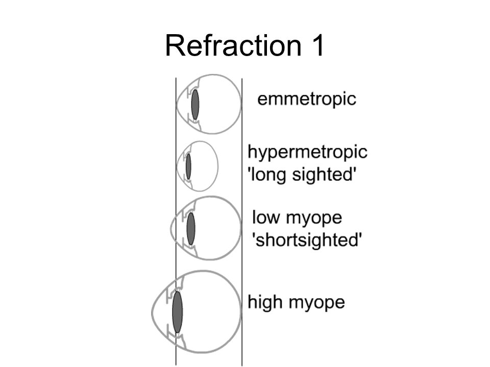 Refraction 1