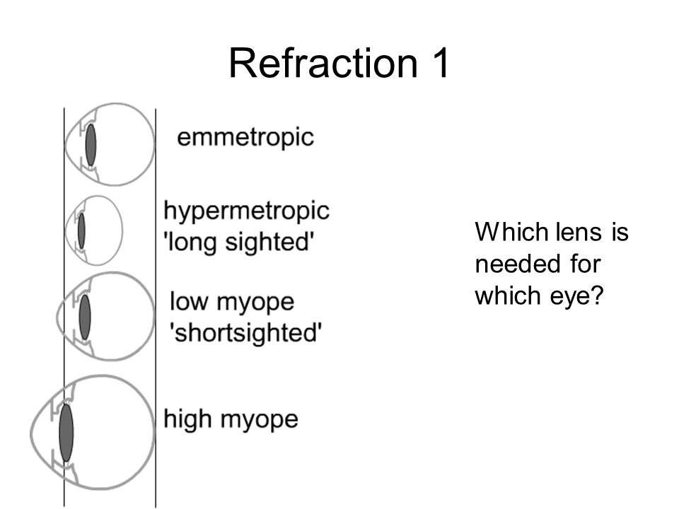 Refraction 1 Which lens is needed for which eye