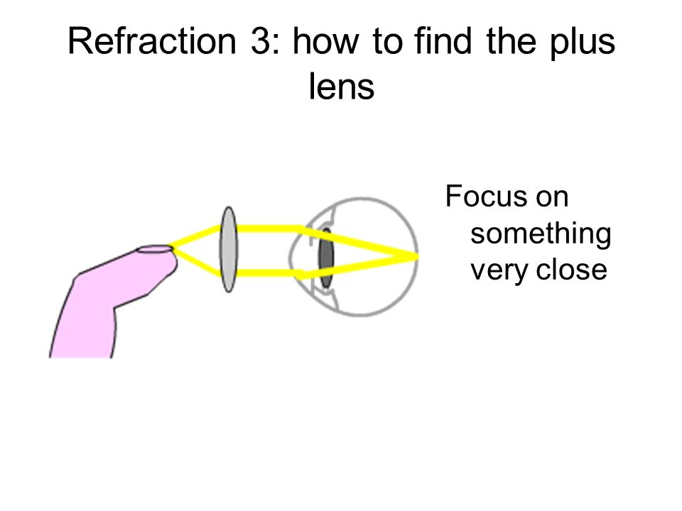 Refraction 3: how to find the plus lens
